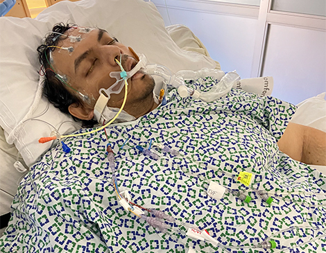 """While in the hospital, Marzuk """"Ron"""" Chaudry was on a ventilator for  3-4 weeks."""